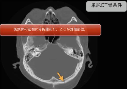 acute subdural hematoma2