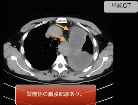 pleural mesothelioma2