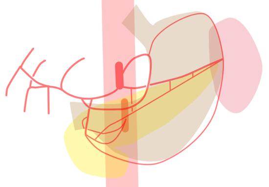 angio-