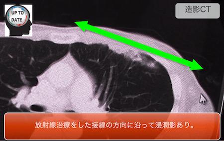 radiationpneumonitis