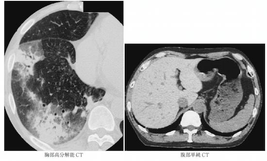 amiodarone lung liver