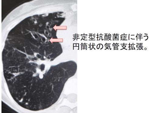 気管支拡張症とは?CT画像診断のポイントは?   画像診断まとめ