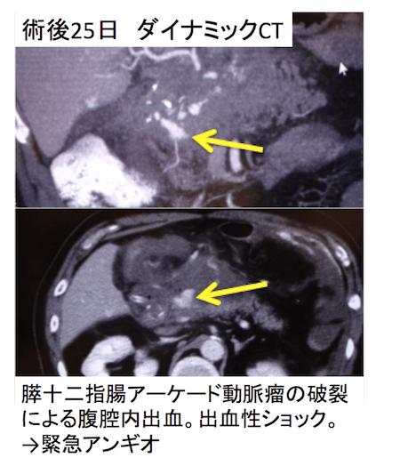 pseudoaneurysm1