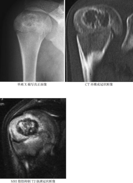 chondroblastoma1