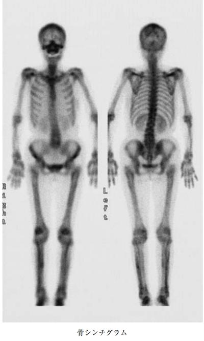 HYPERTROPHIC OSTEOARTHROPATHY