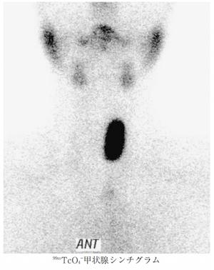 plummer disease