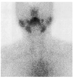 thyroiditis