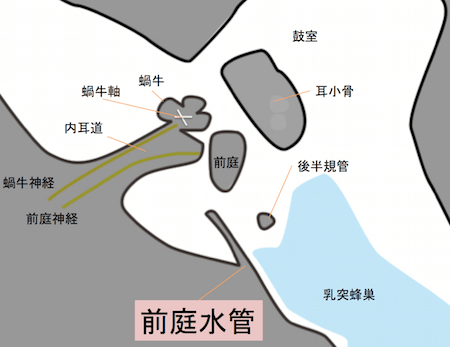 vestibularaqueduct