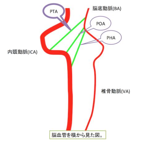 persistent trigeminal artery