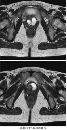 Urethral diverticulum