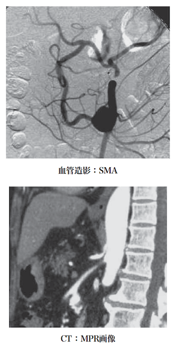 median arcuate ligament syndrome