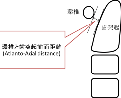 環椎と歯突起前面距離の模式図