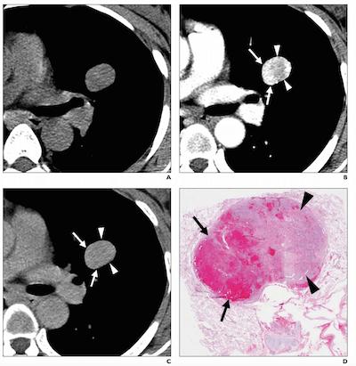 pulmonary sclerosing pneumocytoma