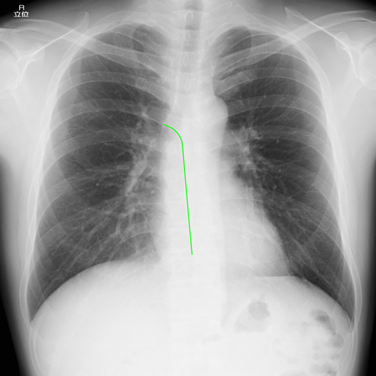 right-paraesophageal-line