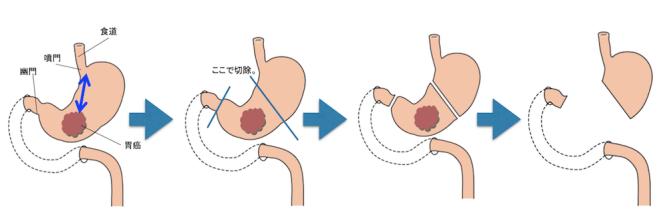 Distal gastrectomy1