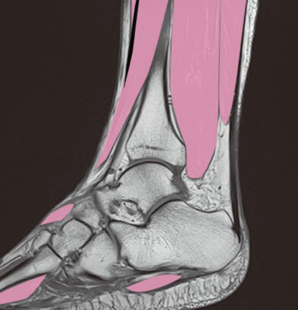 ankle mri2