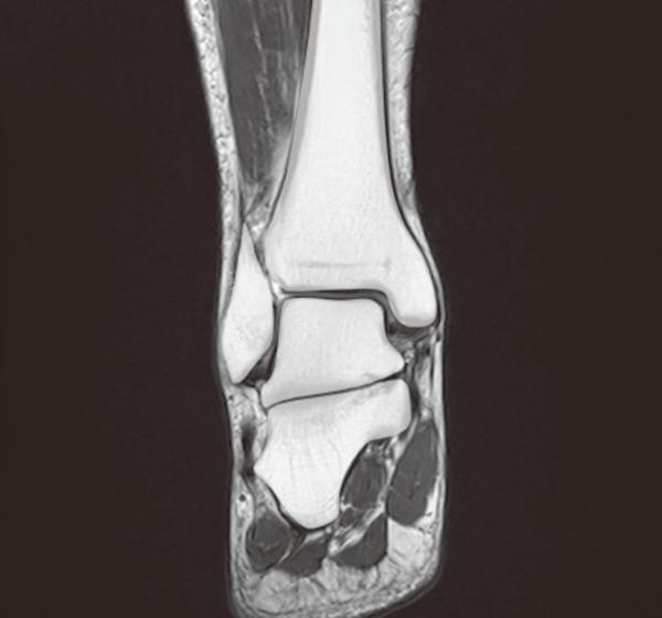 ankle mri3