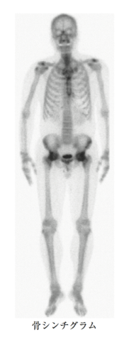 bone-scintigraphy