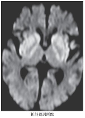 Hypoglycemia encephalopathy