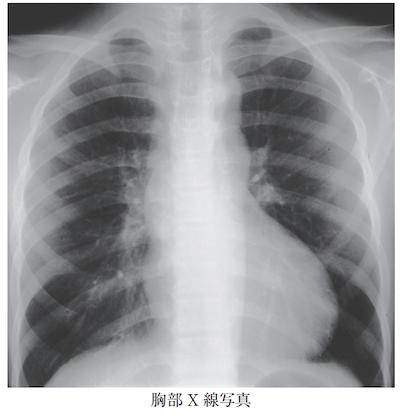 aortic coarctation