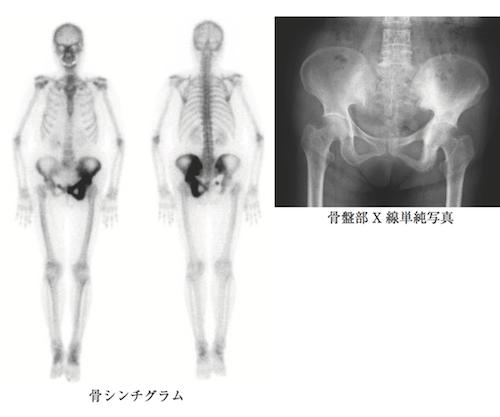 bone-paget-disease