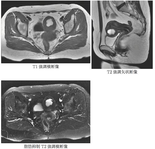 cystic-adenomyosis