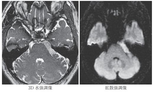 epidermoid tumor