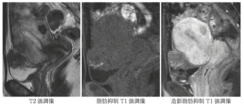 heterotopic-endometriosis