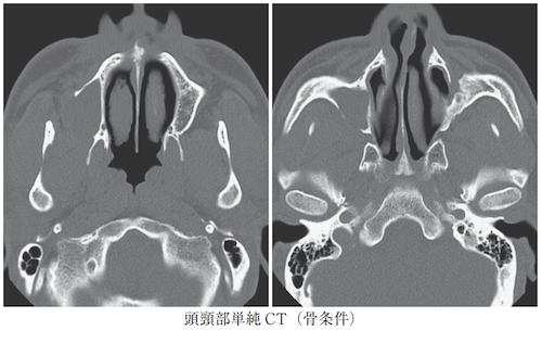 postoperative maxillary cyst
