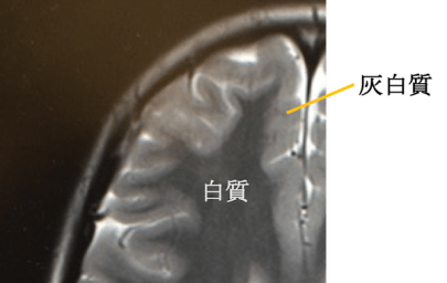 heterotopia mri findings1