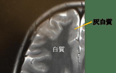 heterotopia mri findings1