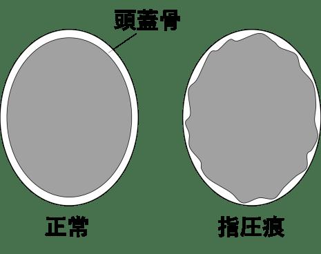 頭蓋骨の指圧痕のイラスト