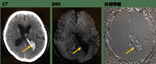 MRIのSWIで出血を示唆する画像