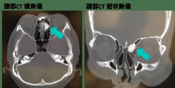 副鼻腔骨腫(osteoma of paranasal sinus)のCT画像
