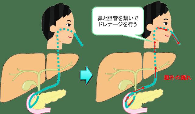 胆管 ドレナージ