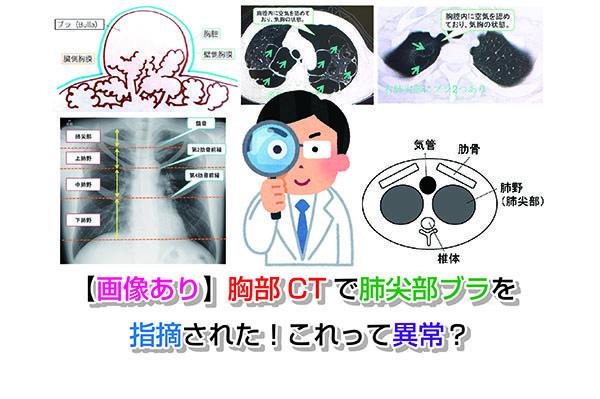 肺 尖 肥厚 両側 部 胸膜