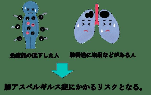 肺アスペルギルス症