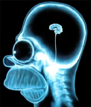 homero-simpson-radiografia-cerebro