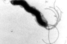 ピロリ菌 胃潰瘍