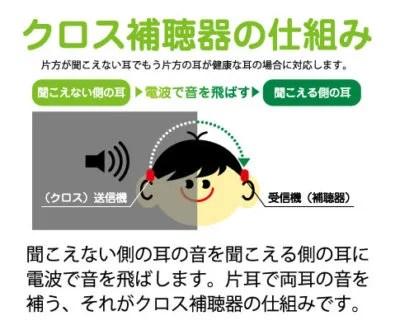 クロス補聴器 仕組み a1