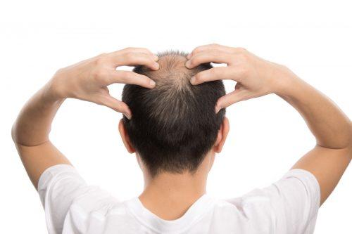 薄毛の人は髪が増加する?ハゲが復活することは可能か?