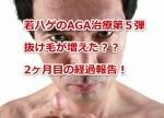 若ハゲのAGA治療第5弾!抜け毛が増えた??2ヶ月目の経過報告!