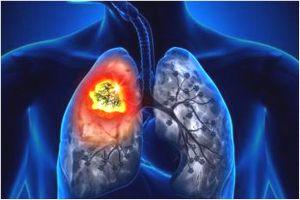 肺がんの原因