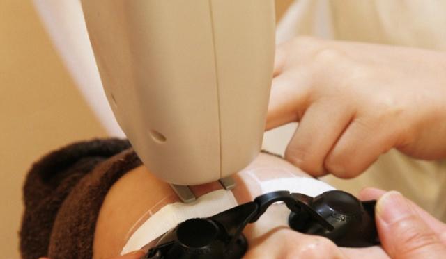 皮膚科でシミそばかすを消す方法