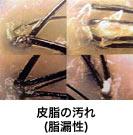 皮脂の汚れ(脂漏性)