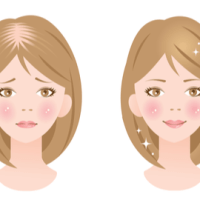 女性の薄毛抜け毛の原因と対策