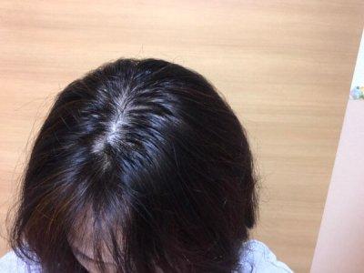 40代女性育毛