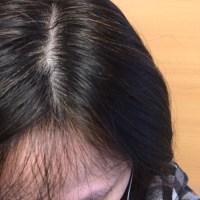 びまん性脱毛