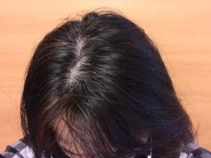 びまん性脱毛頭皮
