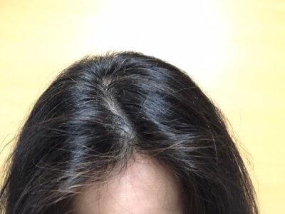 40代の女性の頭皮
